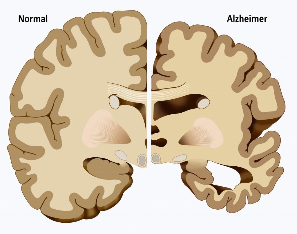 Cerveau sain vs cerveau malade