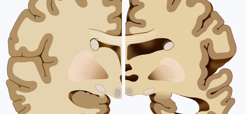 Alzheimer : la régulation du peptide Aβ dans le cerveau malade