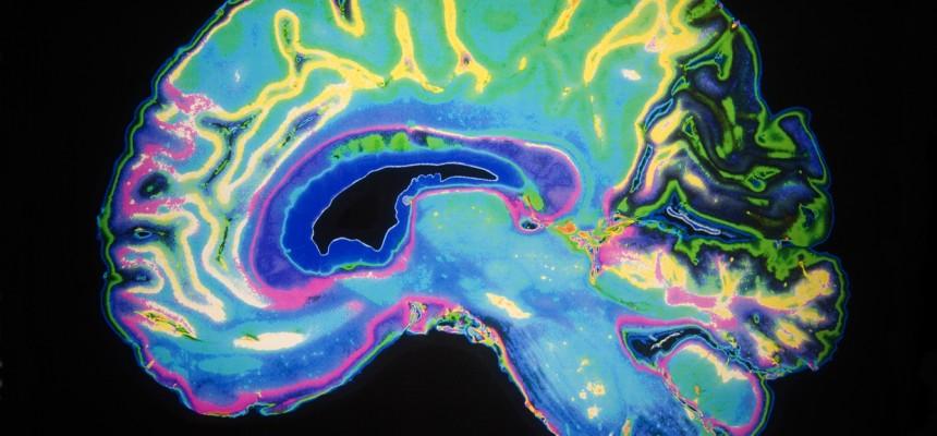 Maladie d'Alzheimer : des facteurs protecteurs ?