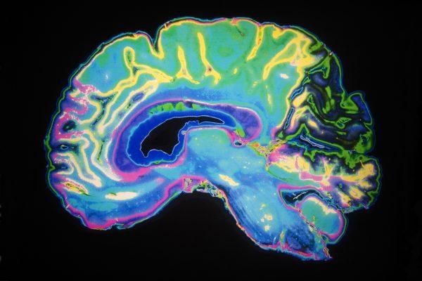 Facteurs protecteurs de la maladie d'Alzheimer