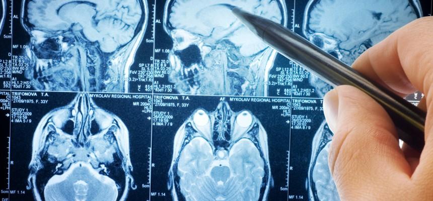 Le cholestérol et la maladie d'Alzheimer