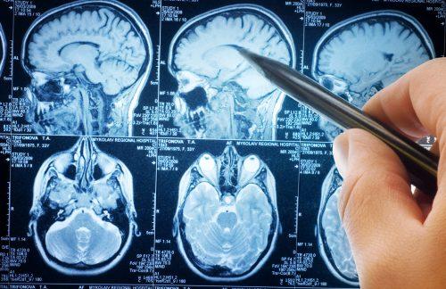 Cholestérol et maladie d'Alzheimer