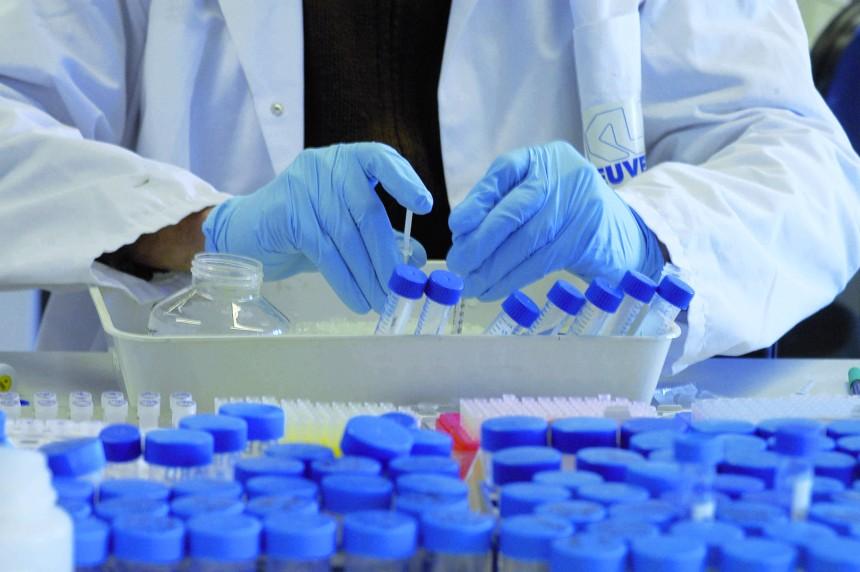 Alzheimer : Un laboratoire marseillais découvre une nouvelle piste de recherche