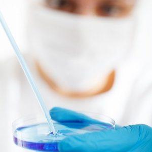Un nouveau biomarqueur de la protéine Tau permettrait de diagnostiquer Alzheimer