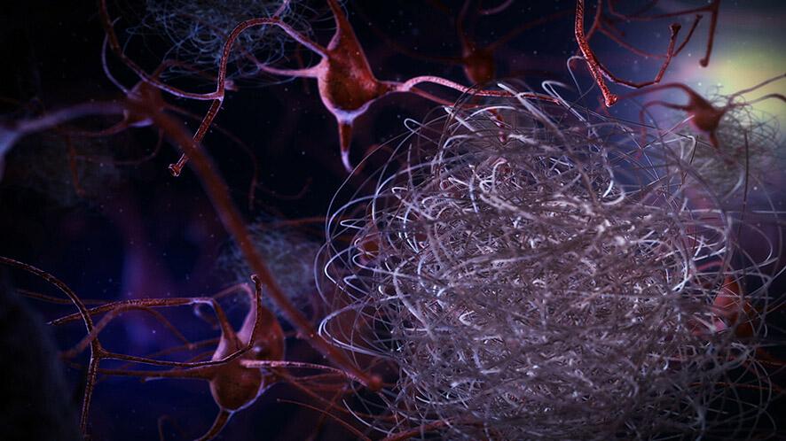 Définition Alzheimer - Neurones et plaques amyloïdes